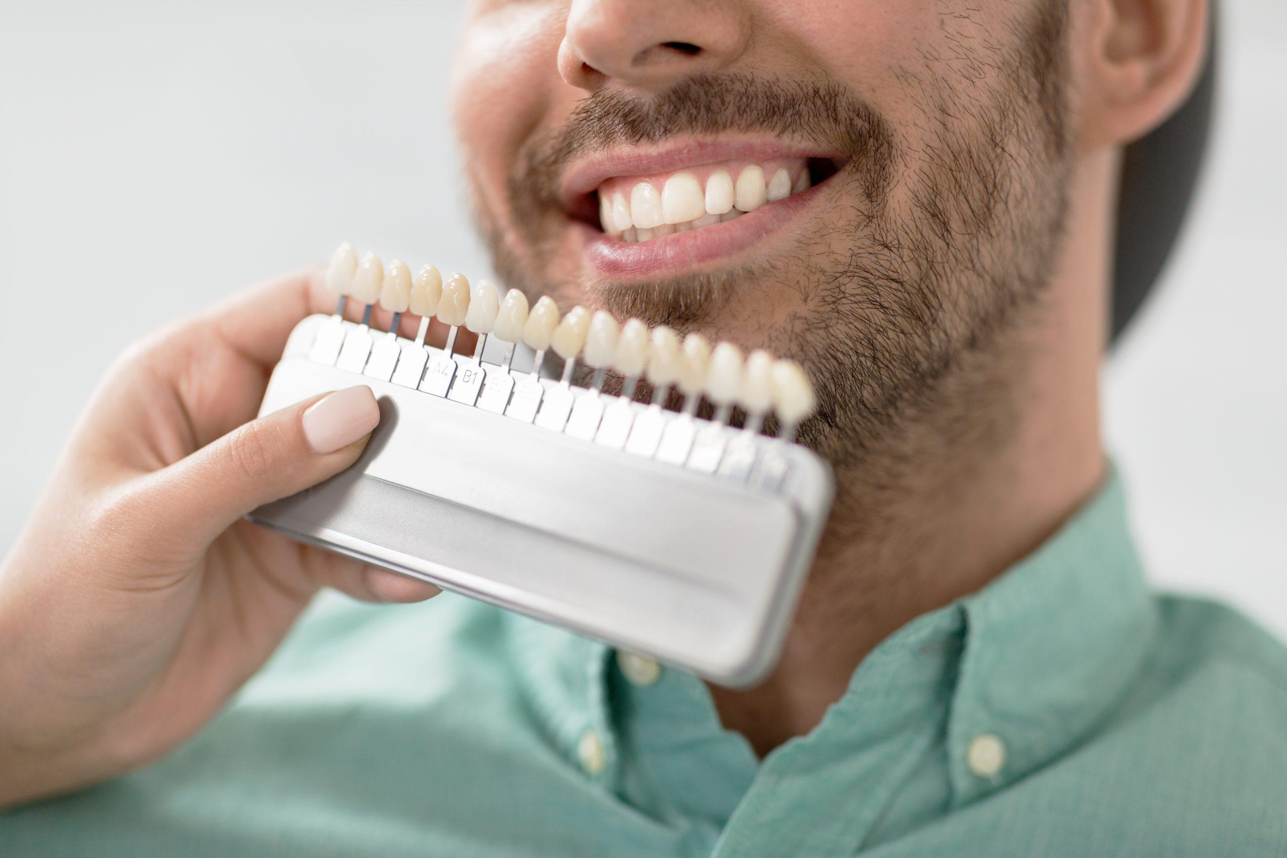 ESTÈTICA DENTAL: especialitat Serveis Dentals de Salt, blanquejament dental