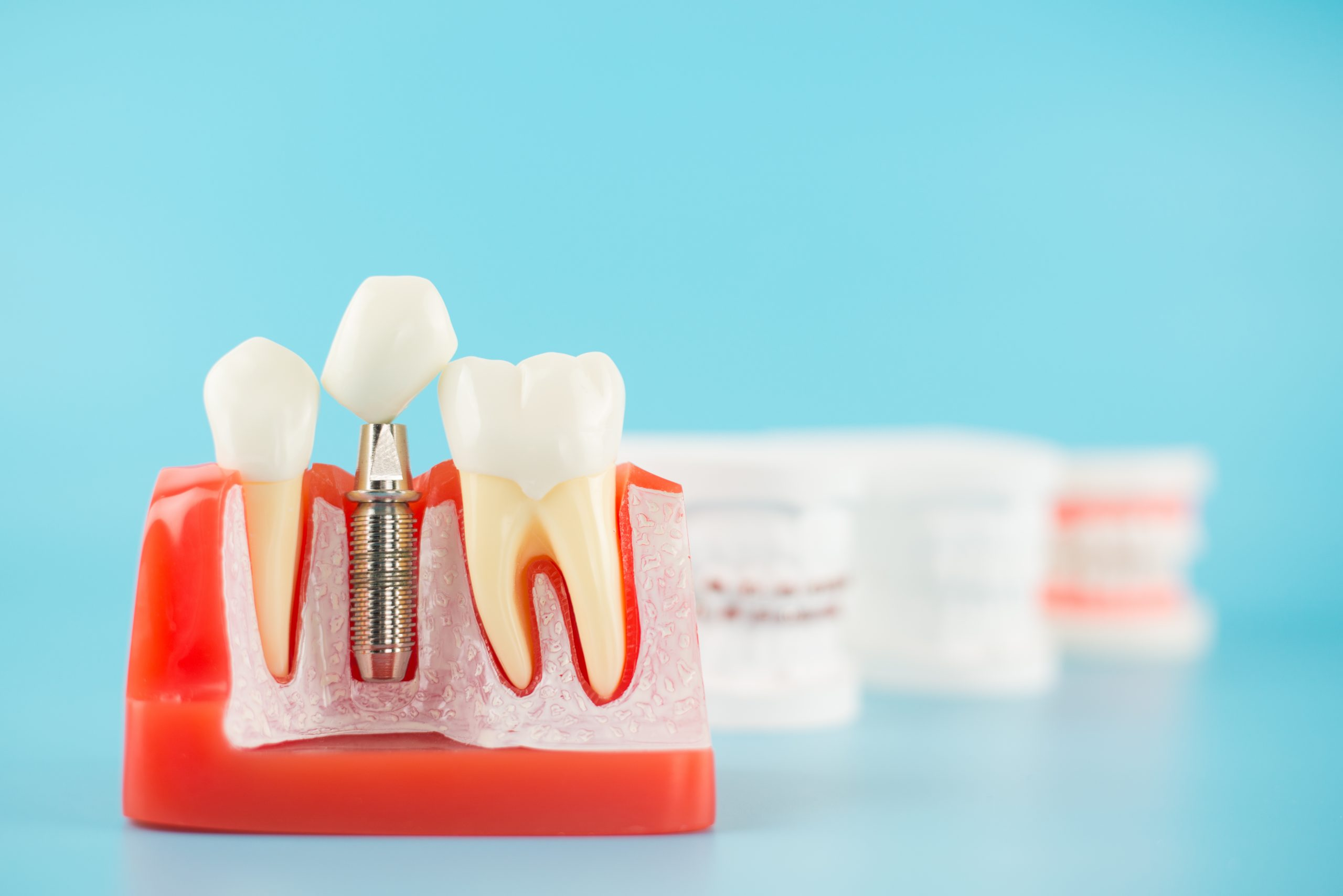 implants i cirurgia bucal, imatge d'un implant dental